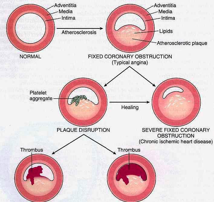 Acute Coronary Artery Disease